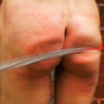 Whips Teen To Welts